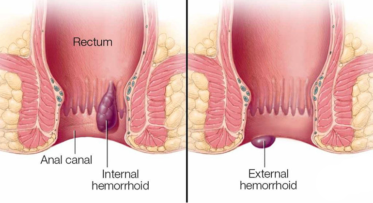 hemorrhostop farmacia